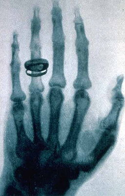 German physicist Wilhelm Rontgen took this X ray during a public lecture in 1896. Public domain image.