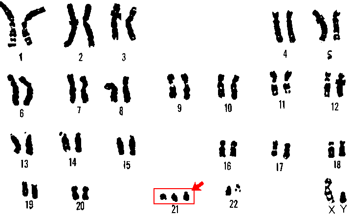 Human genome with a trisomy on chromosome 21. [7]