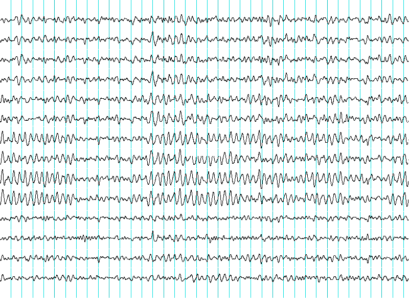This  shows typical brain wave patterns.
