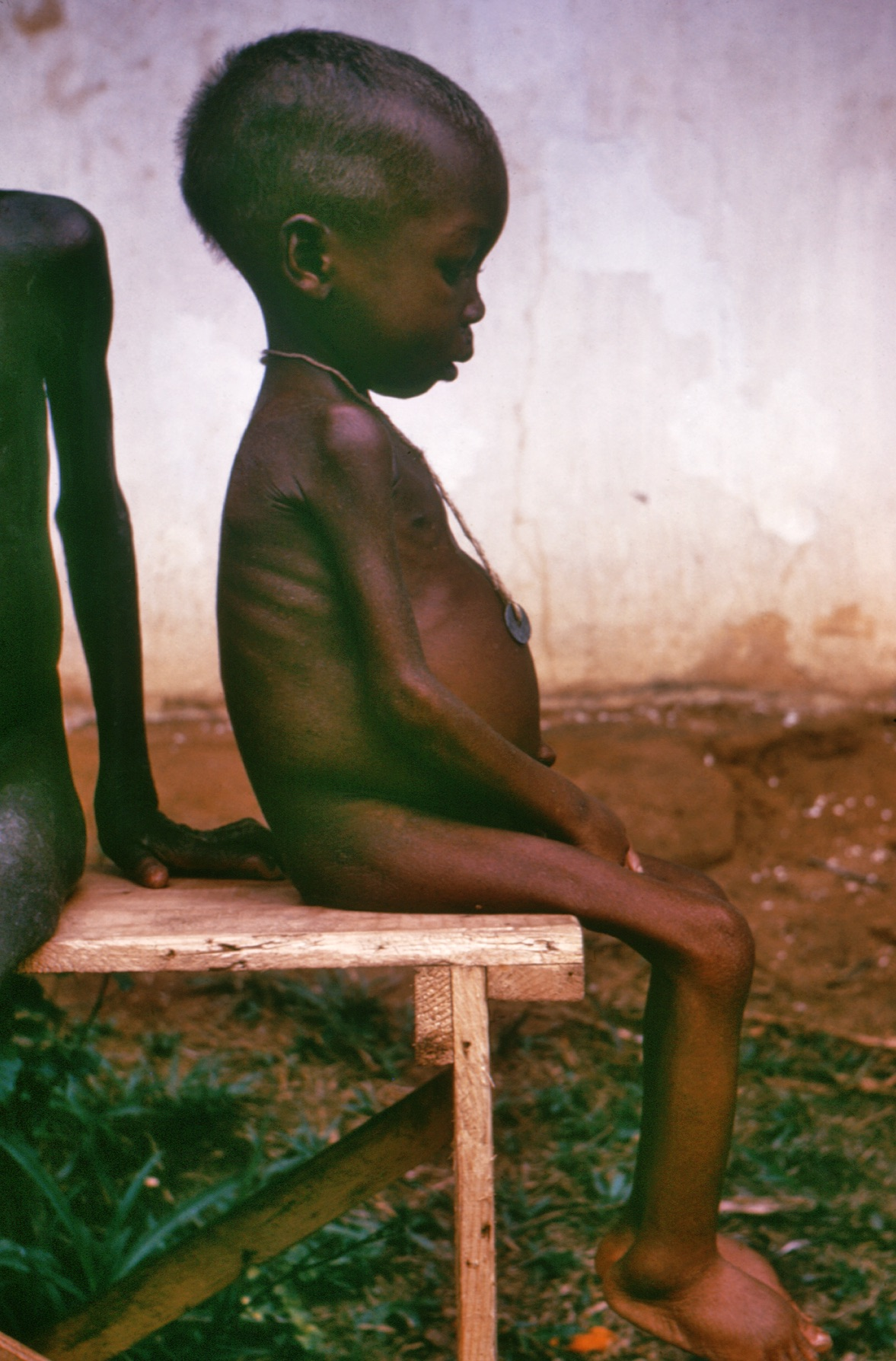 A child with kwashiorkor. Photo taken during a conflict in Nigeria in the 1960's.